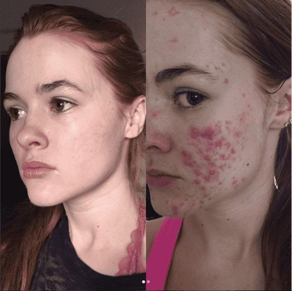 Vencer o acne deu-lhe 22 mil subscritores no Instagram