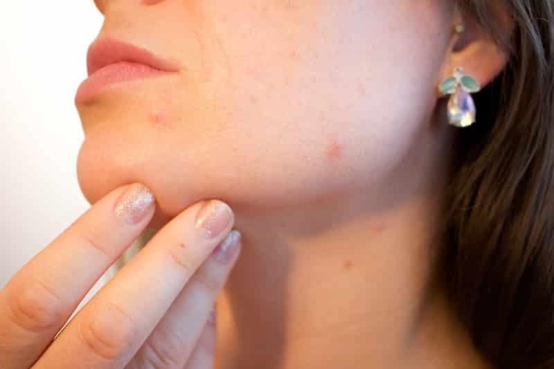 Parece que quem tem acne vai envelhecer melhor